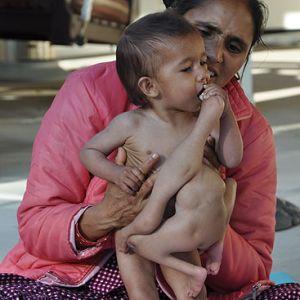 Nepal, nasce bimbo con 8 arti. Salvato dai medici.