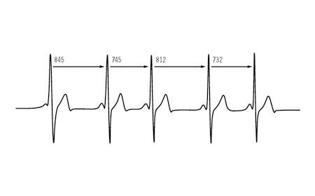 Il battito cardiaco? Si rileva con lo smartphone!