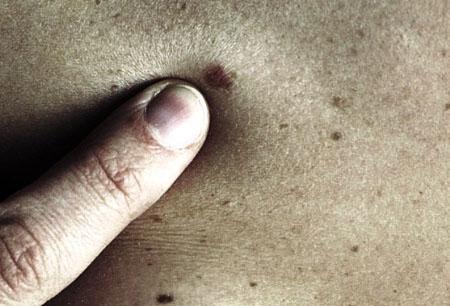 Tumori, rischio melanoma con più di undici nei sul braccio