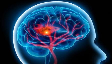 Ictus, un farmaco italiano riduce i danni al cervello