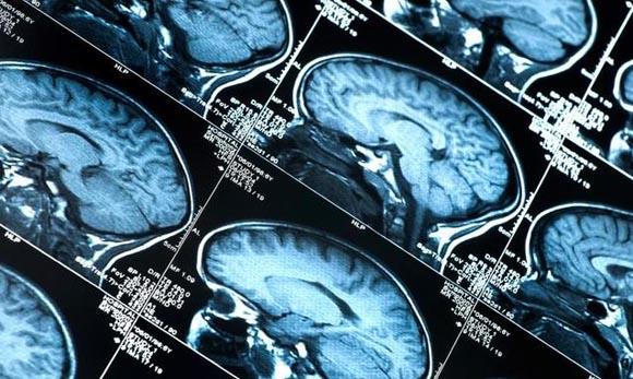 Tumore al cervello, Aspirina liquida potrebbe fare la differenza