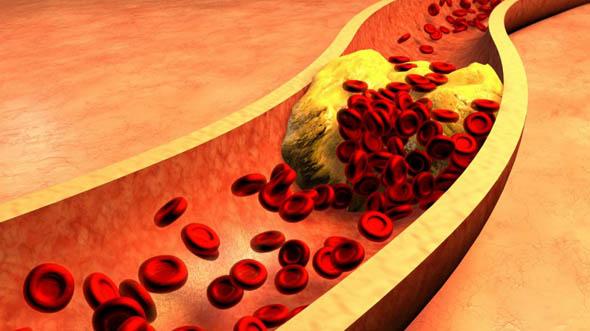 Salute, allo studio il primo vaccino contro il colesterolo