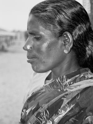 Mutilazione Genitale Femminile (Infibulazione) : Una vergognosa realtà nascosta